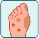 stopa-cukrzycowa-leczenie